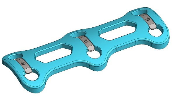 Developing a Spinal Plate Now or In the Near Future?